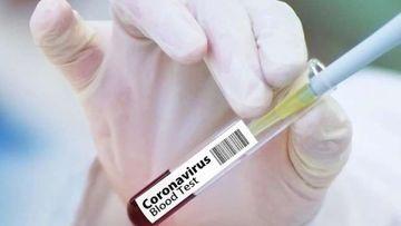 Güləşçilərimiz koronavirusa yoluxdu – federasiya açıqladı